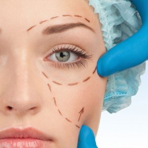 estetik-goz-kapagi-ameliyati