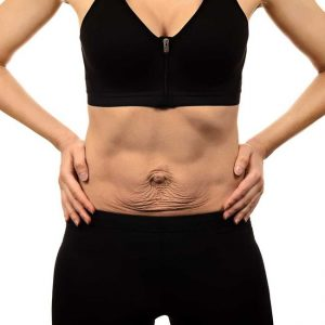kilo-verme-ameliyati-sonrasi-vücut-estetigi
